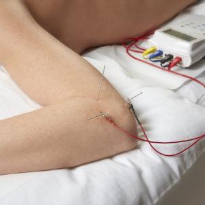 Epicondilite e agopuntura